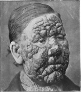 Leprosy-533x600